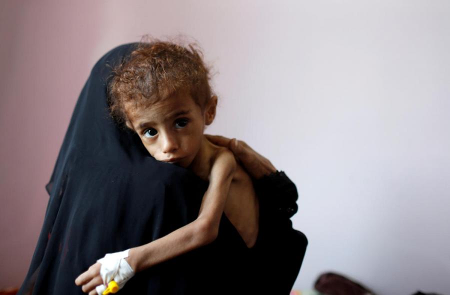 The+Horrifying+News+About+Yemen